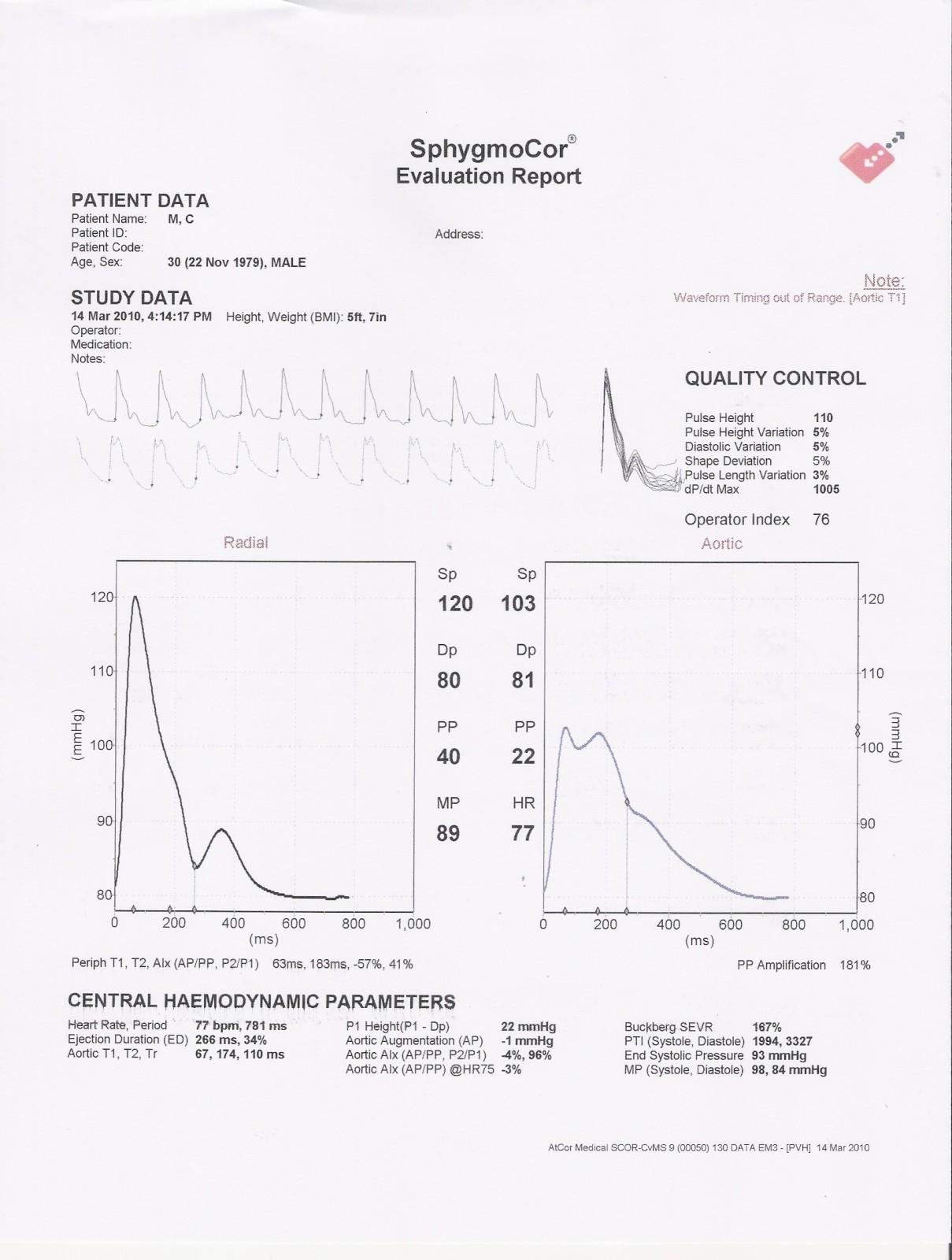 Atcor Medical SphygmoCor   Análisis y Velocidad de forma de onda ...